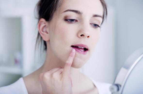 5 způsobů, jak se zbavit popraskaných rtů